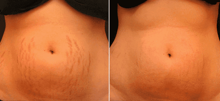 Stretch Marks Plastic Surgery Before After photo - 1