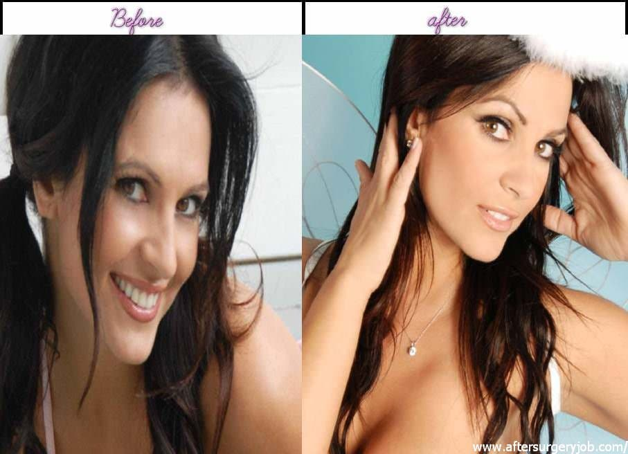 Amazing Plastic Surgery Before And After 1