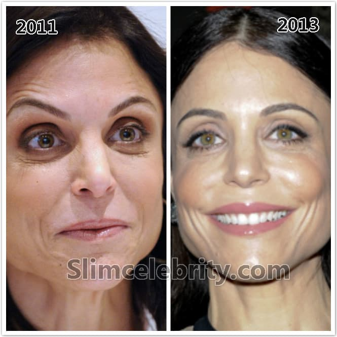 Plastic Surgery Fillers Before And After 1