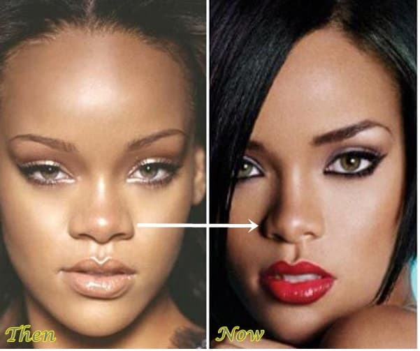 Rihanna Before And After Plastic Surgery 1