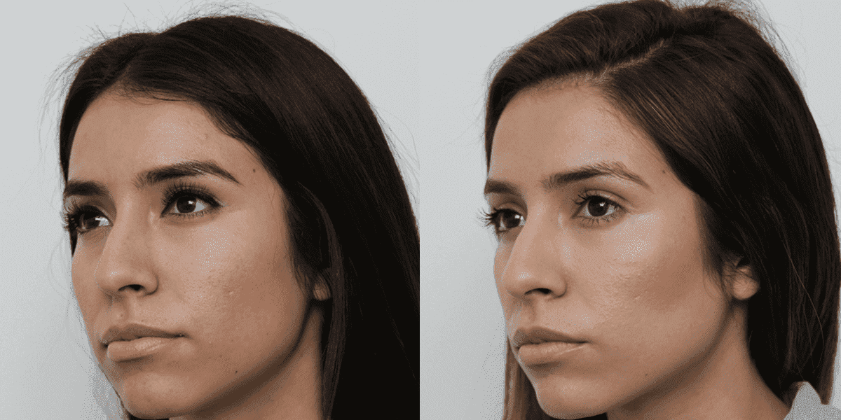 Cheeks Plastic Surgery Before And After 1