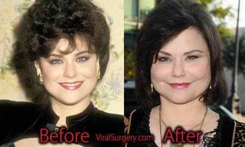 Drastic Plastic Surgery Before And After 1