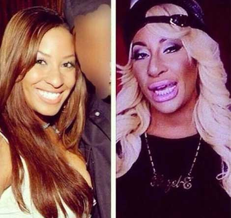 Hazel E Before And After Plastic Surgery 1