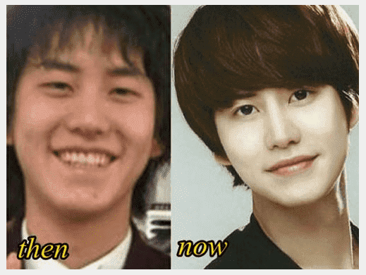 Kyuhyun Plastic Surgery Before And After 1