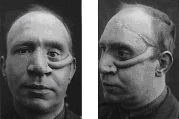 Plastic Surgery Horrors Before And After 1