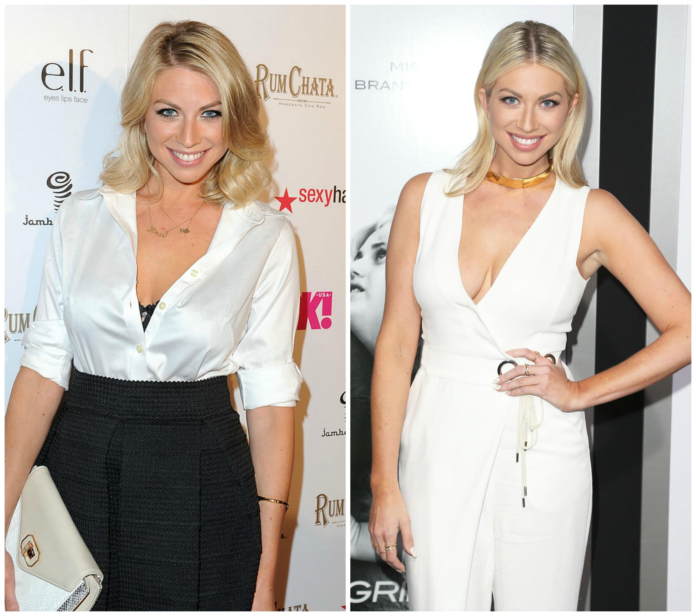 Stassi Before And After Plastic Surgery 1