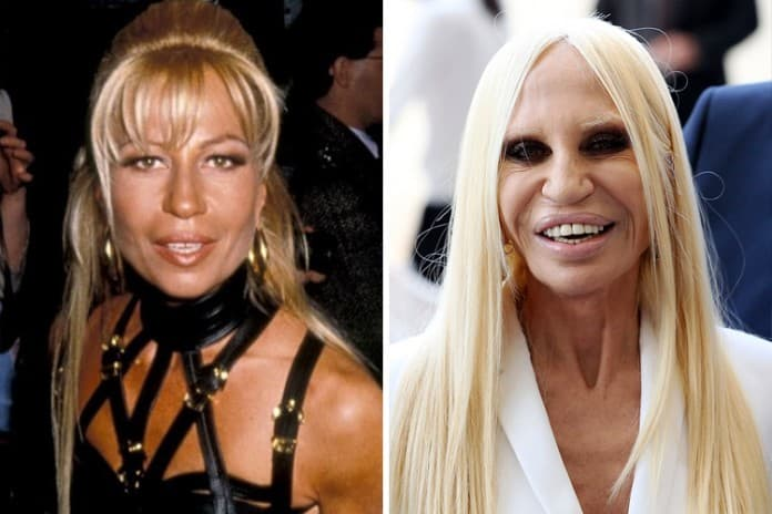 Versace Donatella Before Plastic Surgery 1