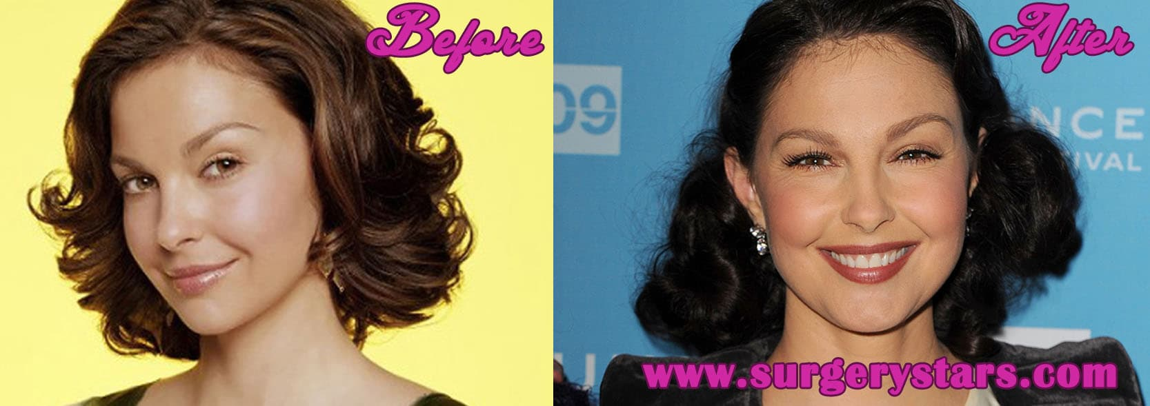 Ashley Judd Plastic Surgery Before After 1