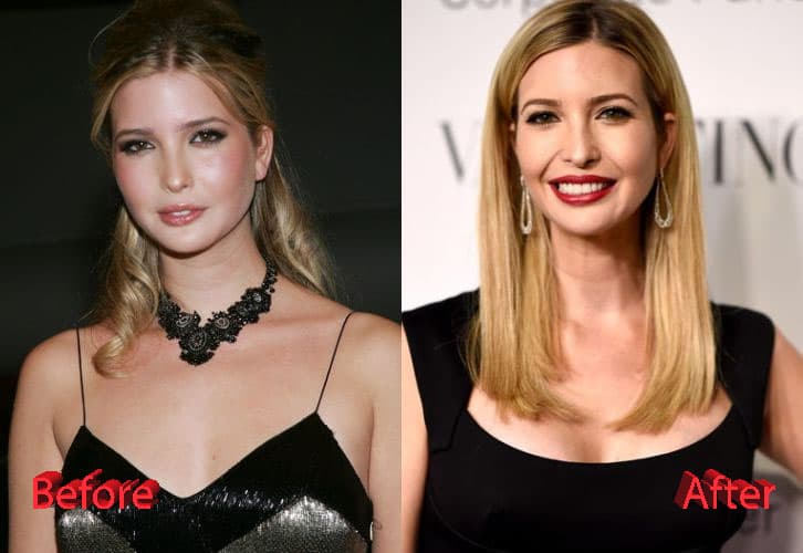 Chelsea Plastic Surgery Before And After 1