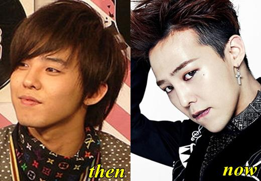 Gdragon Before And After Plastic Surgery 1