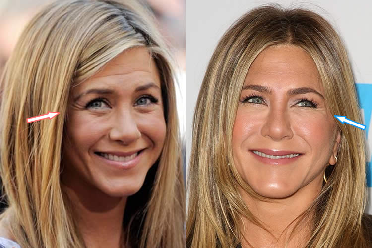 Jen Aniston Before After Plastic Surgery 1