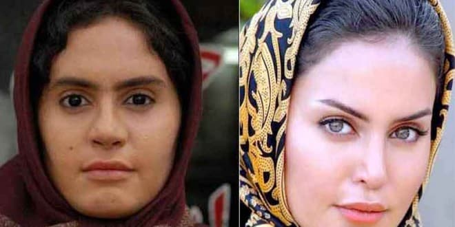 Plastic Surgery In Iran Before And After 1