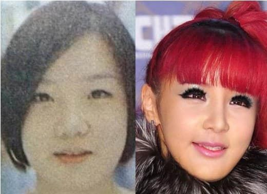 2Ne1 Cl Plastic Surgery Before And After 1