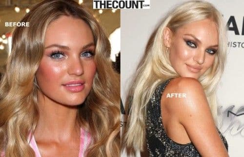Candace Swanepoel Before Plastic Surgery 1