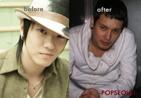 Hwanhee Before And After Plastic Surgery 1