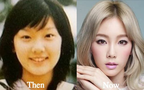 Taeyeon Before And After Plastic Surgery 1