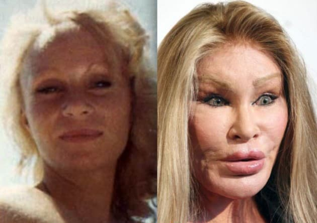 Michelle Pfeiffer Before Plastic Surgery 1