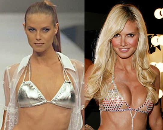Plastic Surgery Before And After Breasts 1