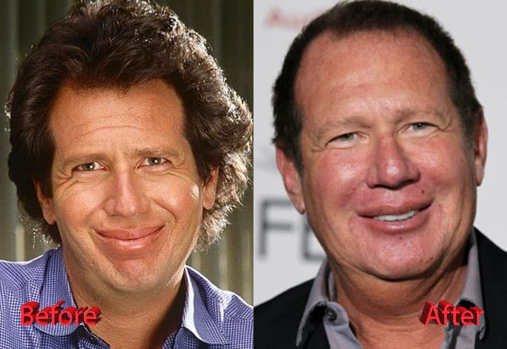 did garry shandling have plastic surgery 1