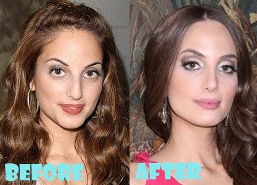 Mila Kunis Before And After Plastic Surgery photo - 1
