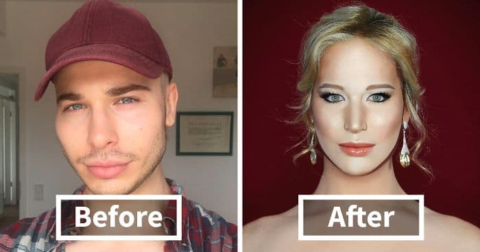Drag Queen Plastic Surgery Before And After photo - 1