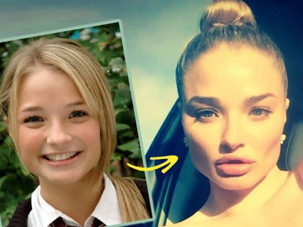 Emma Rigby Plastic Surgery Before And After photo - 1