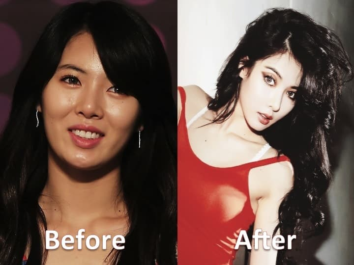 Hyuna Kpop Plastic Surgery Before And After photo - 1