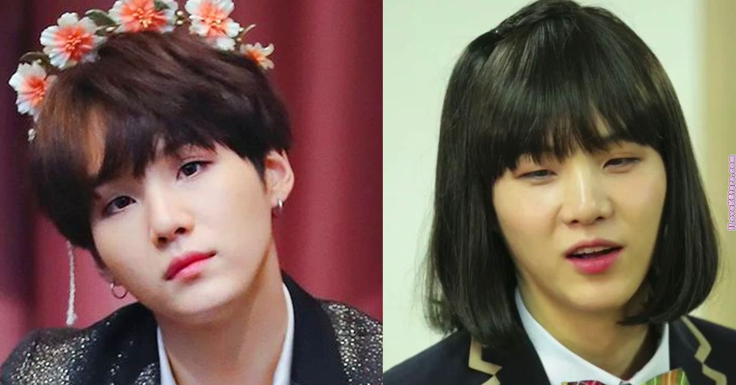 Korean Boy Plastic Surgery Before And After photo - 1