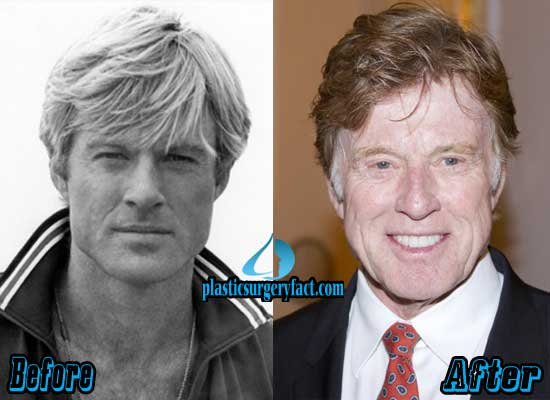 Robert Redford Plastic Surgery Before After photo - 1