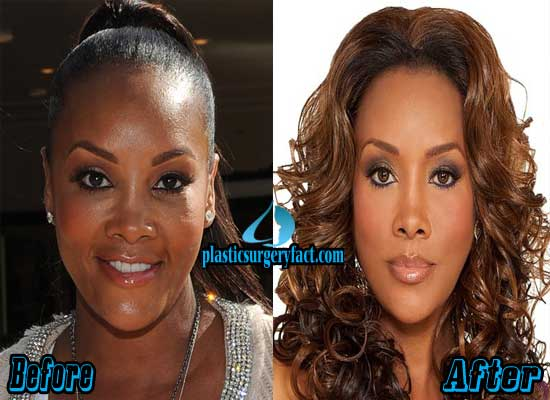 Vivica Fox Before And After Plastic Surgery photo - 1