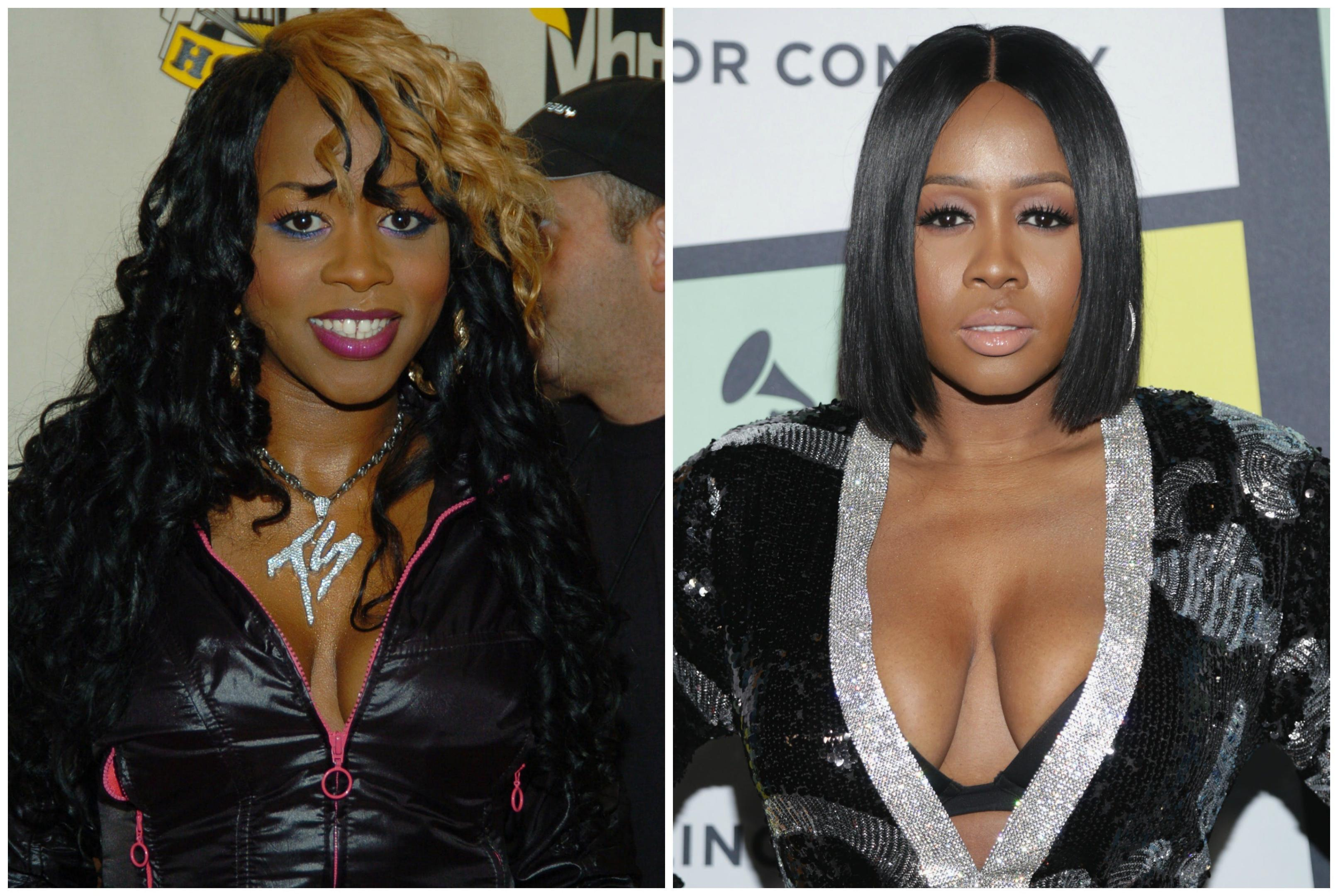 Remy Ma Before And After Plastic Surgery 1