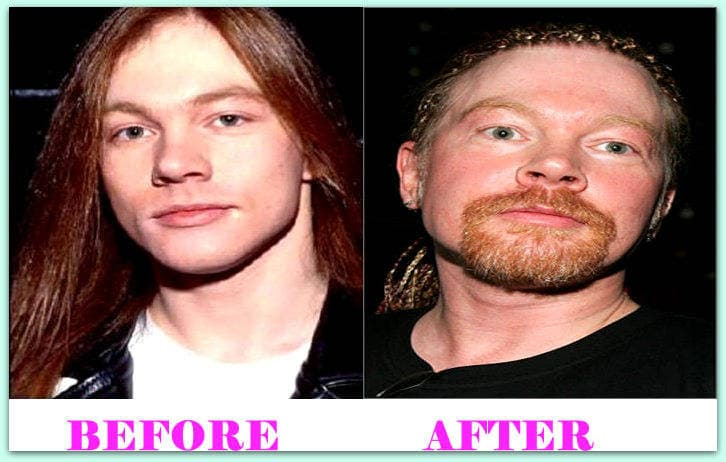 Axl Rose Before And After Plastic Surgery 1