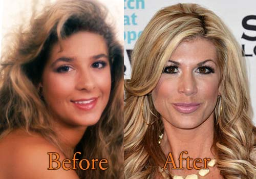 Colombia Plastic Surgery Before And After 1