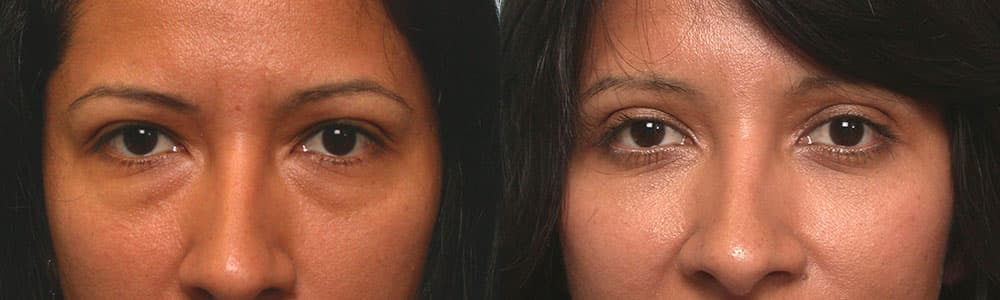 Eye Bags Plastic Surgery Before And After 1