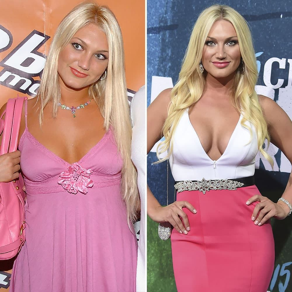 Kaley Cuoco Plastic Surgery Before After 1