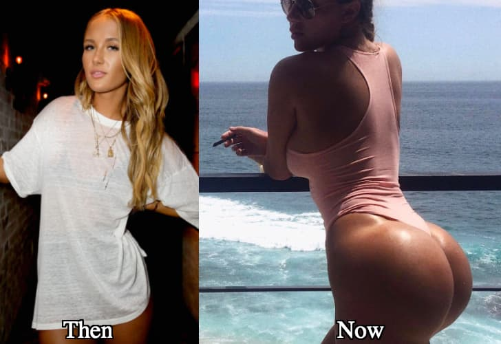 Plastic Surgery Hip Implants Before After 1