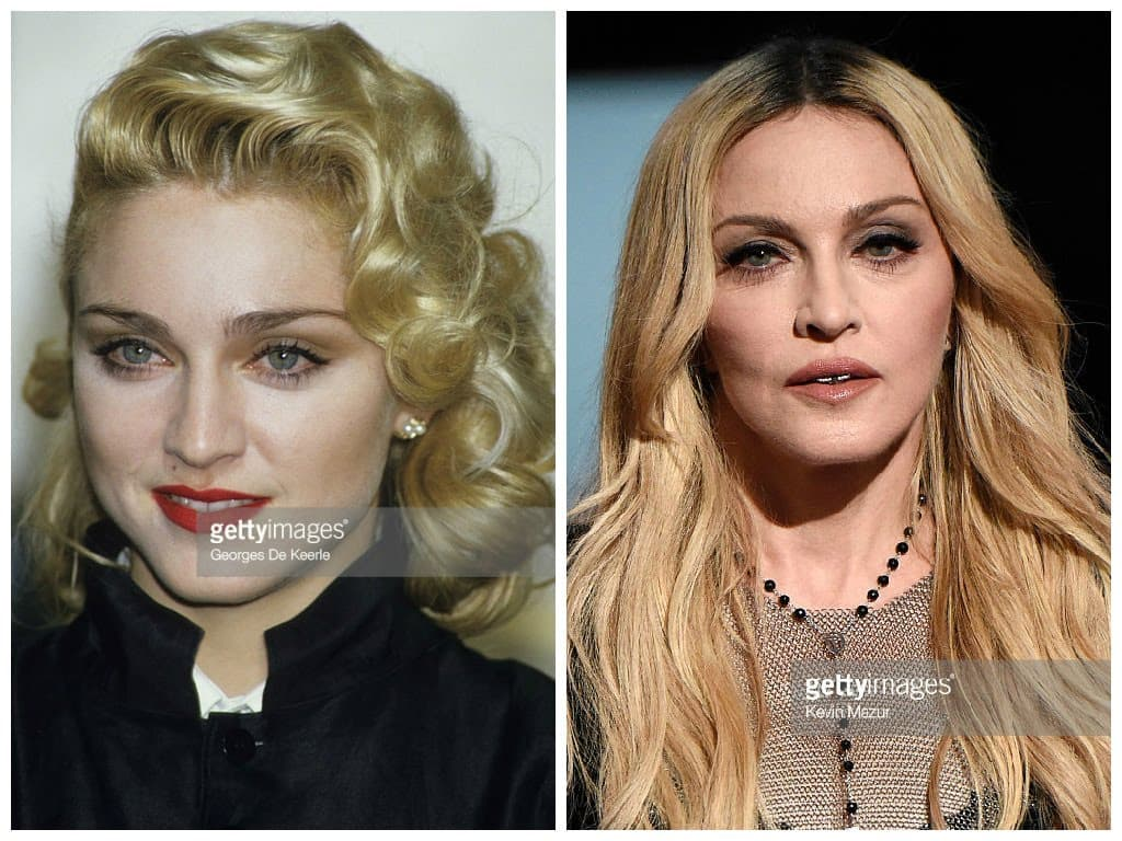 Madonna Plastic Surgery Before And After 1
