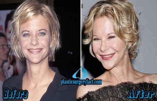 Meg Ryan Plastic Surgery Before And After 1