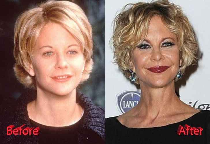 Before And After Plastic Surgery Meg Ryan 1
