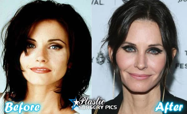 Courtney Cox Before After Plastic Surgery 1