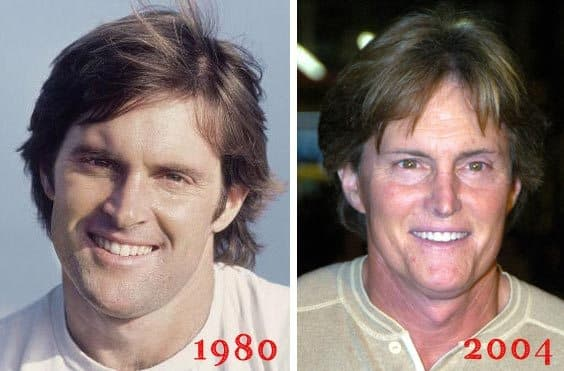 Horrible Plastic Surgery Before And After 1