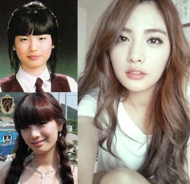Kim Nana Before And After Plastic Surgery 1