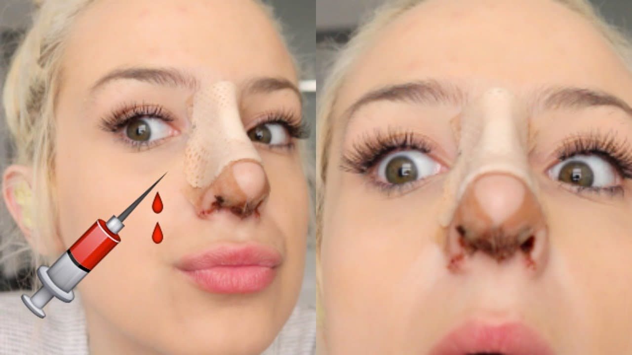 Plastic Surgery Before And After Nose Men 1