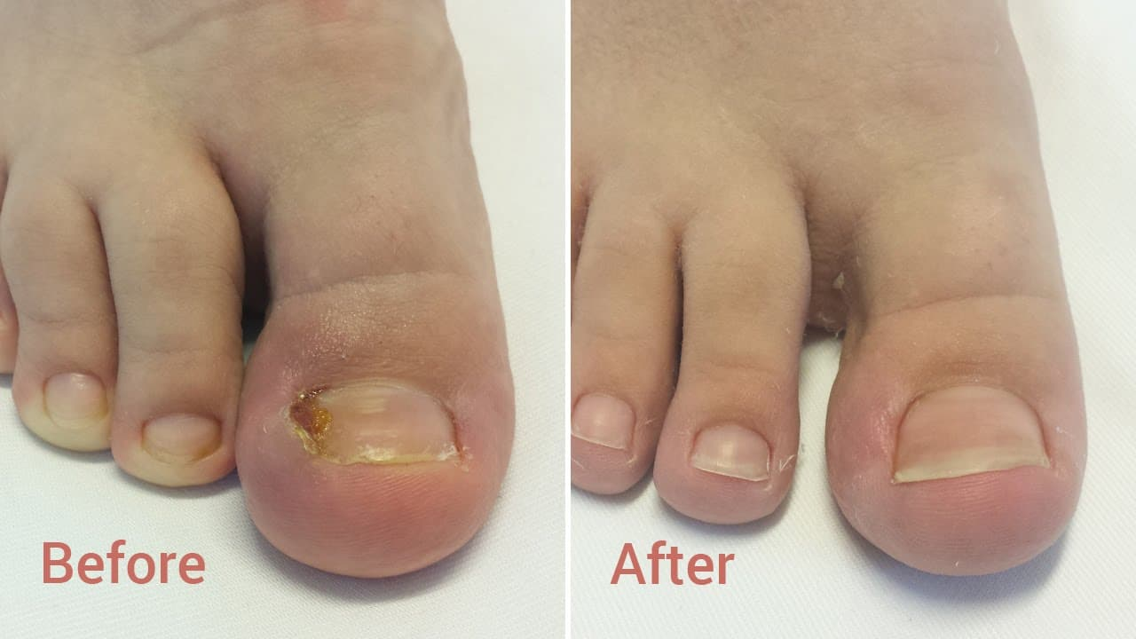 Plastic Surgery For Toes Before And After 1