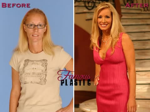 Plastic Surgery The Swan Before And After 1