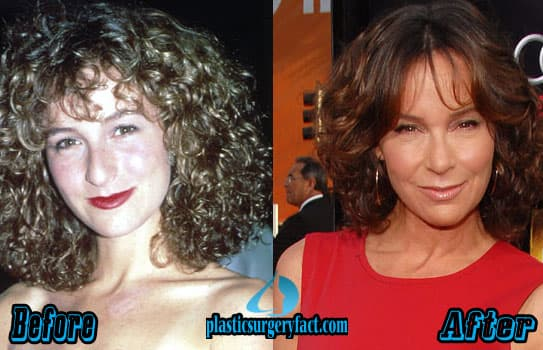 Too Much Plastic Surgery Before And After 1