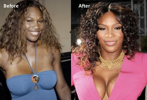 Wendy Williams Before The Plastic Surgery 1