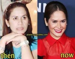 Manny Pacquiao Wife Before Plastic Surgery 1