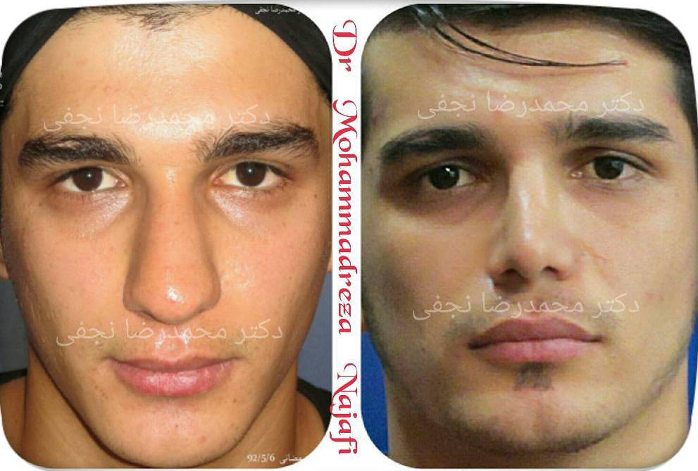 Nose Plastic Surgery Before And After Men 1