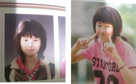 Bae Suzy Before And After Plastic Surgery 1